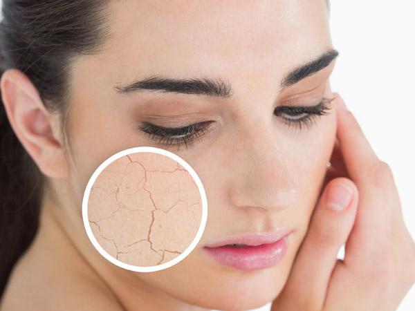 Top 6 cách trị da mặt khô ngứa bong tróc vào mùa đông cực kỳ hiệu quả