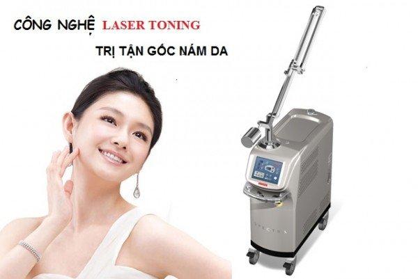 Kết quả hình ảnh cho trị nám bằng công nghệ laser toning